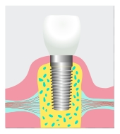 dental implant Fate, Royse City, Rockwall