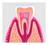 root canal treatment in Fate, Royse City, Rockwall